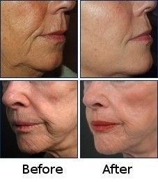 Did you know that facial yoga toning exercises can firm and tauten saggy cheeks and jowls within days? Women and men just love their new natural facelifts
