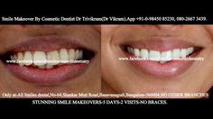 Smile makeovers by expert cosmetic dentist Dr trivikram in Bangalore.Cosmetic dentistry, Smile designing, Smile makeover, Smile Sculpting, Aesthetic Dentistry. Crowded teeth, chipped, stained, crooked teeth or gaps between teeth can be corrected without any braces/clips in 7-10 days ALL SMILES -.located only at - N0.64, SHANKAR MUTT MAIN ROAD BASAVANAGUDI.(no other branches). BANGALORE-560004. PH +91-0- 98450 85230.080-26673439.More at http://www.allsmilesdc.org/cosmetic-dentistry/.