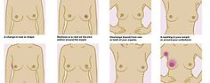 Breast Cancer: Early Signs, Symptoms, Self Check.