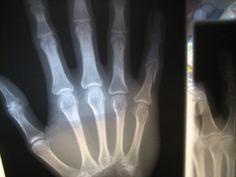 Surgeons Use 3D Printing to Improve Bone Fracture Surgeries