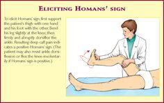 eliciting Homans' Sign #nursing