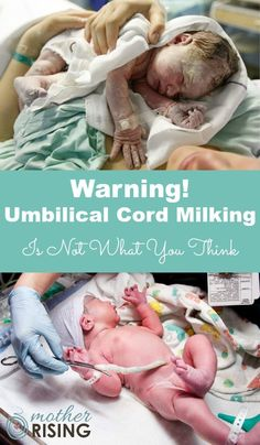 """Umbilical cord milking is where the cord is pinched and """"milked"""" immediately following birth in order to quickly push blood into the baby (as you would squeeze ketchup out of a packet, or honey out of a honey stick). Starting as close to the placenta as possible, moving towards the baby, a care provider milks the cord several times before the cord is finally clamped and cut, usually within 20 seconds. Umbilical cord milking is also sometimes called """"stripping the cord"""". Mom And Baby, Baby Love, Raspberry Leaf Tea, Kids Fever, Baby Massage, After Baby, Pregnant Mom, First Time Moms, Baby Hacks"""