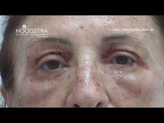 Cirugía de párpados  con láser y sin cicatrices - YouTube