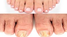 #fungus #toenailfungus #fungalinfection #remedy #homeremedy #treatment #naturaltreatment #ayurvedichomeremedies - Fungal Nail Infection | 3 Simple Home Remedies to get rid of Toenail Fungus | Instant Relief | Ayurvedic Home Remedies, Home Remedies For Skin, Hair Color Ideas For Brunettes Balayage, Laser Eye Surgery Cost, Types Of Fungi, Remedies For Tooth Ache, Toenail Fungus Cure, Blackhead Remedies, Fungal Nail Infection