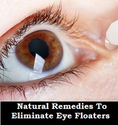 Natural Treatments to Eliminate Eye Floaters