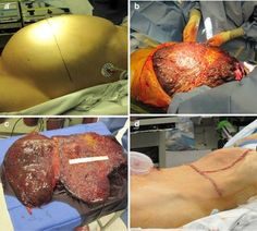 Removal of a giant cavernous hepatic hemangioma