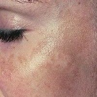 As we age, brown areas can appear on the skin. These are called age spots or liver spots. They appear like flat brownish-colored skin discolorations, which can appear on the face and other areas of the body. Brown Spots On Hands, Age Spots On Face, Age Spot Treatment, Age Spot Remedies, Age Spot Removal, Best Face Serum, How To Do Eyeliner, Moisturizer For Dry Skin, Tips Belleza