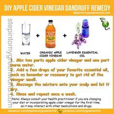 Dandruff home remedy!