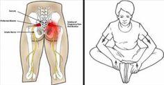 esercizi dolore sciatico lubrificare