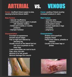 Arterial vs Venous Ulcers good for new nurse teaching& pts Nursing School Tips, Nursing Career, Nursing Tips, Nursing Notes, Nursing Schools, Lpn Schools, Critical Care Nursing, Medical Student, Nursing Students
