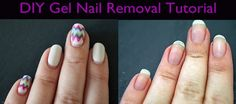 How To Remove Gel Nails without damaging your natural nail. Click through for the full tutorial. #DIY #Beauty