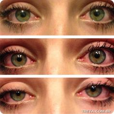marijuana before and after and then back to before ( marijuana cannabis )