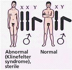 Klinefelter-syndrome.jpg (291×286)