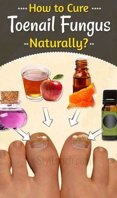 Watch This Video Mind Blowing Home Remedies for Toenail Fungus that Really Work Ideas. Astonishing Home Remedies for Toenail Fungus that Really Work Ideas. Toenail Fungus Remedies, Toenail Fungus Treatment, Fungus Toenails, Toe Fungus Cure, Eye Stye Remedies, Natural Home Remedies, Health Remedies, Home Treatment, Home Remedies