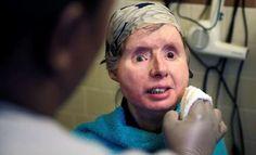 AP Photo: En esta fotografía del 20 de febrero de 2015, Charla Nash sonríe mientras le lavan la cara en su departamento en Boston. Nash se sometió a un trasplante facial en 2009 después de ser atacada por un chimpancé, pero en mayo de 2016 regresó al hospital porque su cuerpo está rechazando el implante. (Foto AP/Charles Krupa)