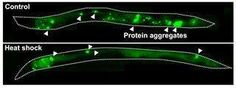 Our Parkinson's Place: Research identifies cellular recycling process lin...