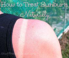 how to treat sunburn naturally