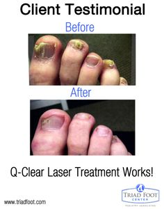 Q Clear Laser Treatment For Toenail Fungus Works Before