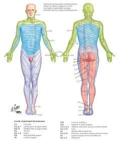 This dermatome is a map showing what areas of the body are affected by specific pinched nerves in the spine.  My problems at L4-L5-S1 gave me pain at top of knees, down the backs of my thighs and back/outer side of calf, numb outer calf, outside of foot, and completely numb small toes, ice cold burn top of foot, and shooting pain into big toe.
