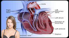 5 Common Types of Heart Disease