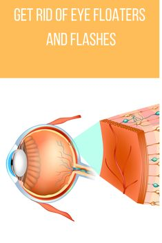 Our goal at About Eye Floaters is to educate people about eye floaters and general eye health. learn how to get rid of eye floaters! Floaters And Flashes, Eyelash Glue, How To Get Rid, Eyelashes, Education, Eyes, Learning, Health, Lashes