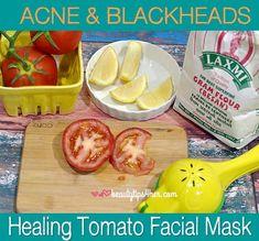 Acne And Blackhead Healing Tomato Facial Mask | Beauty and MakeUp Tips