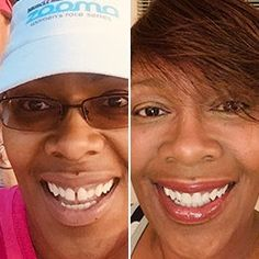 Get clear braces without in-office visits for thousands less than a traditional orthodontist. Get started with a free scan at a Candid Studio. Teeth Alignment, Clear Aligners, Teeth Straightening, Starter Kit, Your Smile, Beauty Skin, Get Started, Chakra, Candid