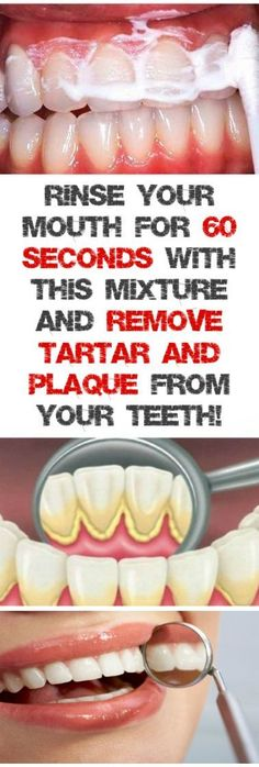 RINSE YOUR MOUTH FOR 60 SECONDS WITH THIS MIXTURE AND REMOVE TARTAR AND PLAQUE FROM YOUR TEETH! #removetartarfromteeth