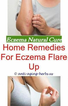Entfernung von Cellulite Nyc ID: 7960232415 . Causes Of Cellulite, Cellulite Exercises, Cellulite Remedies, Reduce Cellulite, Anti Cellulite, Cellulite Cream, Cellulite Workout, Home Remedies For Eczema, Oils For Eczema