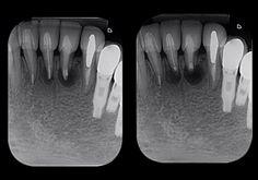 #cirurgia #endodonticsurgery #endodontic#dentista #endodontia #endodontictreatment #endodontics #dentistry #durr #microsonics #microscope #dentist #endogroup #odontolove #canal #odontology #odonto #reciproc #vdw #rootcanaltreatment #rootcanal #rootcanals #surgery by fabiohojo Our Root Canals Page: http://www.lagunavistadental.com/services/general-dentistry/root-canals/ Other General Dentistry services we offer: http://www.lagunavistadental.com/services/general-dentistry/ Google My Business…