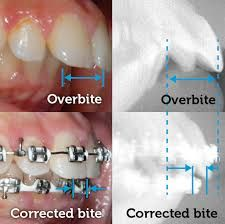 Braces Before And After, After Braces, Overbite Correction, Braces Tips, Teeth Braces, Funny Clips