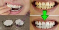 Επιβεβαιωμένο – Λευκάνετε τα κίτρινα δόντια σας σε λιγότερο από 2 λεπτά… [video]