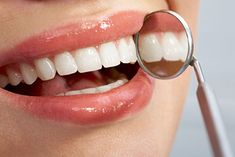 Top Oral Health Advice To Keep Your Teeth Healthy. The smile on your face is what people first notice about you, so caring for your teeth is very important. Unluckily, picking the best dental care tips migh Oral Health, Dental Health, Dental Care, Smile Dental, Gum Health, Teeth Health, Healthy Teeth, Gum Disease Treatment, Braces Tips