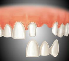 Gaps left by missing teeth eventually cause the remaining teeth to rotate or shift into the empty spaces, resulting in a bad bite. Bridges are commonly used to replace one or more missing teeth.