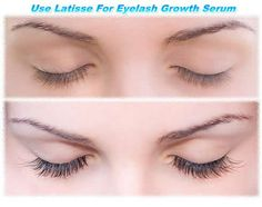 Does bimatoprost make eyelashes grow Bimatoprost can enhance lash growth when used regularly. The FDA approved bimatoprost has helped a lot women getting darker, thicker & longer eyelashes in short time period.   Buy affordable latisse online at indianpharmadropshipping.com  Email me your orders at order@indianpharmadropshipping.com