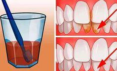 Un sorriso bianco e spendente è il biglietto da visita di ogni persona. Spesso però fumo, caffè o alimenti particolarmente acidi possono intaccare il bianco dei denti. Ecco allora una soluzione facile ed economica per sbiancare i denti con solo 3 ingredienti.Avere denti bianchi non è solo un fatt...