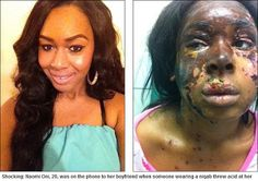 Naomi Oni, before and after an acid attack in December 2012