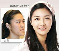 Thẩm mỹ khuôn mặt 3D khác gì so với thẩm mỹ mặt thông thường? 1