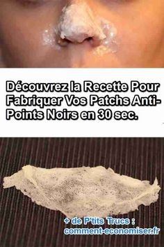comment fabriquer patch anti points noirs maison