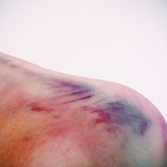 How is it that bruises can be so beautiful?