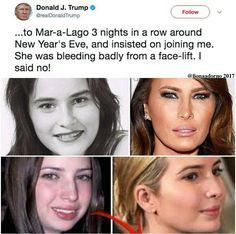 Looks like Melania & Ivanka went under the knife....boob job too! You are such a hypocrite Mister Trump 😡