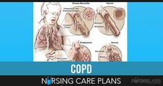 In this nursing care plan guide are 7 NANDA nursing diagnosis, interventions, and goals for Chronic Obstructive Pulmonary Disease (COPD). Respiratory Acidosis, Respiratory Therapy, Respiratory System, Pulmonary Fibrosis, Cystic Fibrosis, Nursing Care Plan, Nursing Diagnosis, Medical Terminology, Nclex