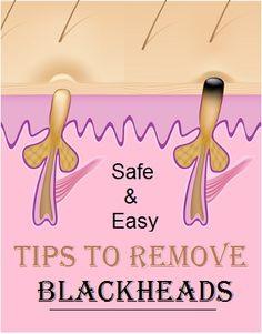 How to Remove #Blackheads @ Home..?