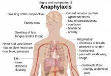 Anafilaxis – Que es, causas, síntomas, diagnostico y tratamiento