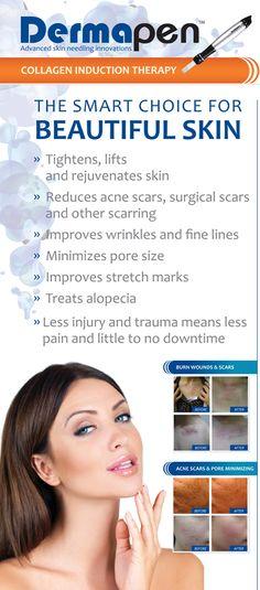 Dermapen can help soften #acnescars