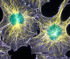 Filamentous actin and microtubules (structural proteins) in mouse fibroblasts (cells) (1000x), Fluorescence