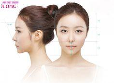 Nâng mũi bọc sụn là phương pháp nâng mũi hiện đại, tạo dáng mũi cao, thanh thoát. Vậy cần lưu ý điều gì sau khi phẫu thuật nâng mũi bọc sụn?