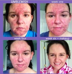 RF Unblemish!  Look at her amazing results!! No Doctors appt, no co-pay, nothing to lose except the acne! 60 day money back guarantee if you don't love your results!!