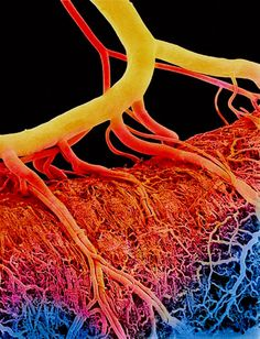 Possibly use ailments as inspiration. blood vessels for heart attacks Medical Science, Science And Technology, Scanning Electron Micrograph, Electron Microscope, Medical Photos, Microscopic Photography, Micro Photography, Microscopic Images, Macro And Micro