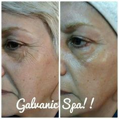 Galvanic Facial, Galvanic Body Spa, Nu Skin Ageloc, Face Wrinkles, Facial Massage, Healthy Skin Care, Face Skin, Beauty, Keto